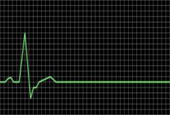 heart flat line